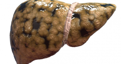 Non-alcoholic fatty liver disease and diabetes—are they symptoms of gut dysbiosis?