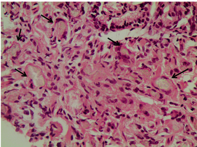 Figure 1 | Histological findings in the stomach of the case patient. Haematoxylin and eosin (H&E) staining. Magnification x400.