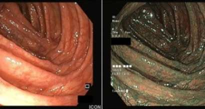 An elusive lesion in the colon