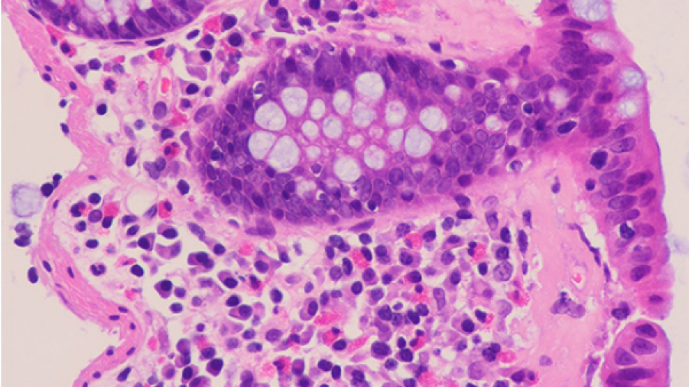 Mistakes in microscopic colitis and how to avoid them