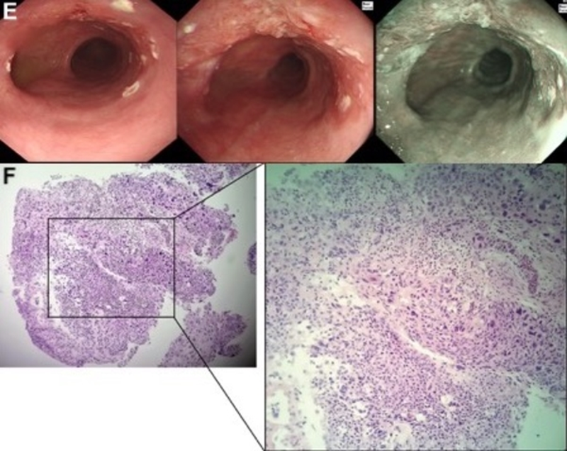A case at the crossroads of dermatology and gastroenterology