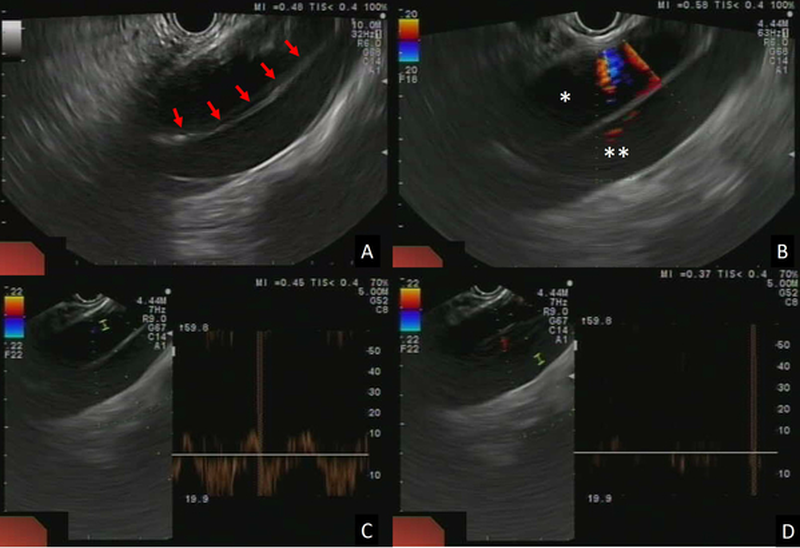 Figure 1 | EUS view of the aortic dissection. A | B-mode image showing the dissected thoracic aorta with the intimal flap (arrows) separating the two lumens. B | Colour Doppler showing blood flow in the true lumen (*) and no flow in the false lumen (**).