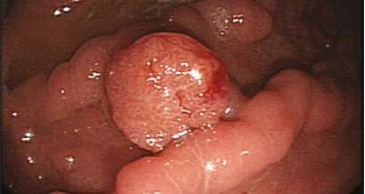 Gastrointestinal Neuroendocrine Tumours
