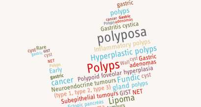 Gastric polyps