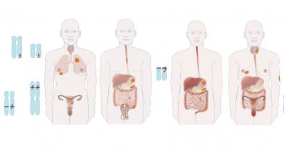 Hereditary gastrointestinal polyposis syndromes