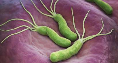 Mistakes in the management of Helicobacter pylori infection and how to avoid them