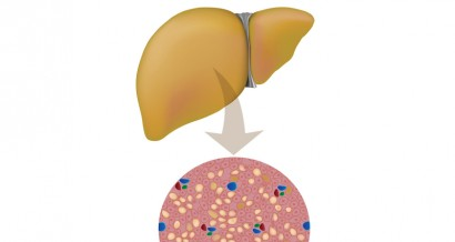 Mistakes in nonalcoholic fatty liver disease and how to avoid them