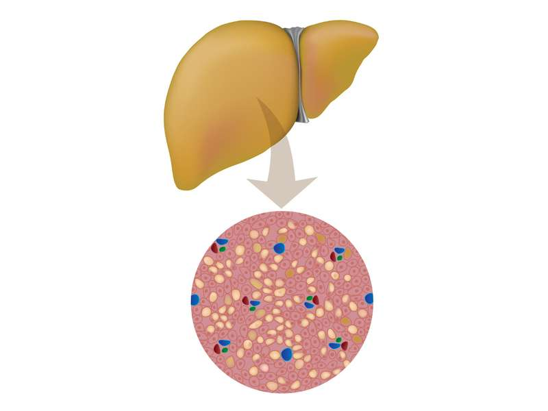 Mistakes in nonalcoholic fatty liver disease